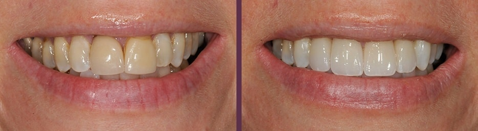 A before and after case study for Invisalign and Crowns from our Waldorf dentistry experts.
