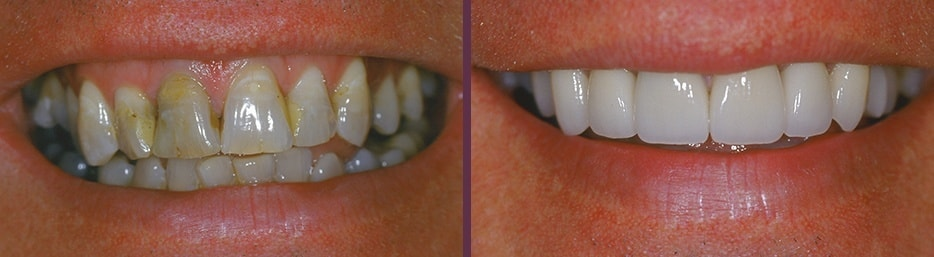 An actual case study from our cosmetic dentistry expert in Waldorf, Dr. Bradley J. Olson.