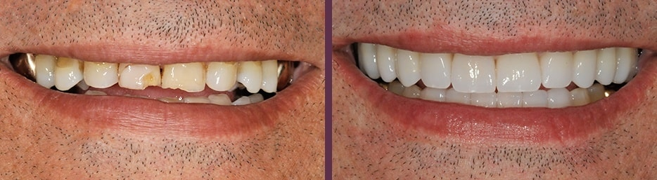 A before and after case study of dental reconstruction from Dr. Bradley J. Olson.