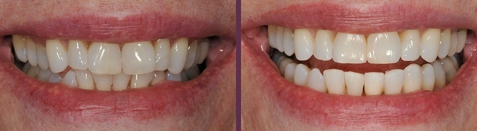 A before and after case study of Invisalign and Bonding.
