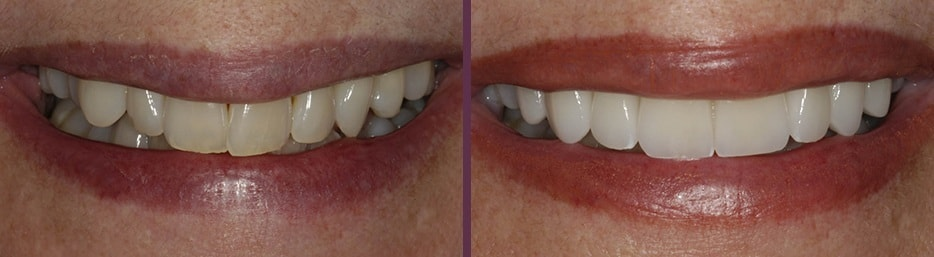A smile before and after cosmetic dentistry treatment with Dr. Olson in Waldorf