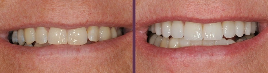 An actual Invisalign and Veneers case study from Dr. Bradley J. Olson.
