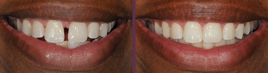 A before and after case study of Invisalign clear aligner therapy closing gap in front teeth smile.