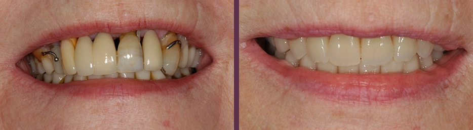 An actual case study showing the dramatic results before and after implant dentures (implant supported dentures) from Dr. Olson.