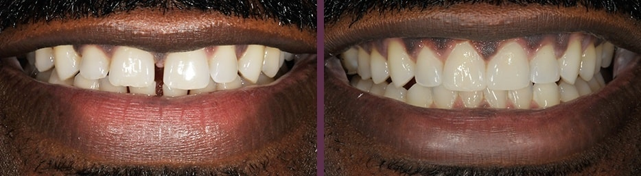 A case study showing the effects of Invisalign and bonding treatment before and after treatment.