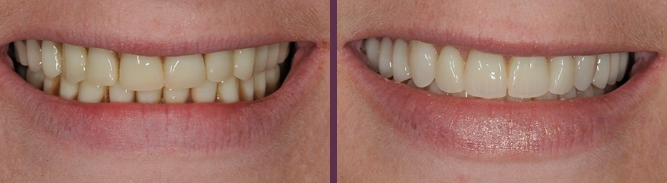 The difference traditional dentures can make in restoring your smile as shown in this before and after case study.