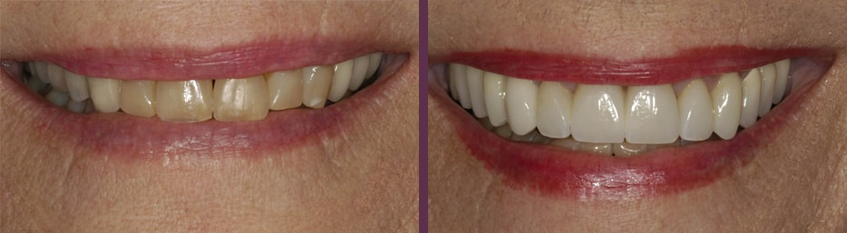 Before and after female patient dental crowns with cosmetic dentist, Dr. Bradley J. Olson in Waldorf, MD