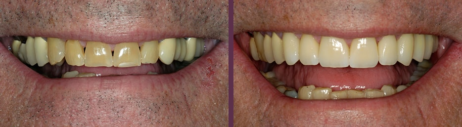 Before and after of male patient who needed extensive restorative dental crowns due to failing previous dental work