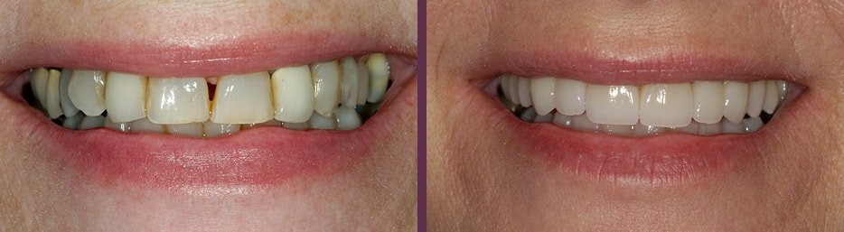 Beautiful aesthetic dental crowns on female patient performed by Dr. Bradley J. Olson, dentist in Waldorf, MD