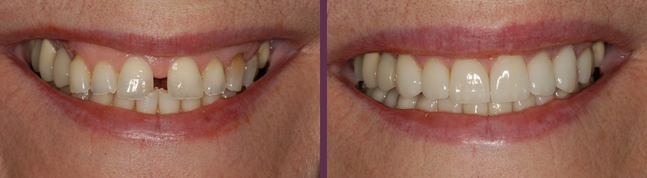 Dental crowns before and after that helped close the unaesthetic gap in this patients smile