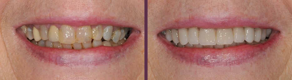 beautiful dental crowns make this patient's smile look younger, more attractive and restored function and health