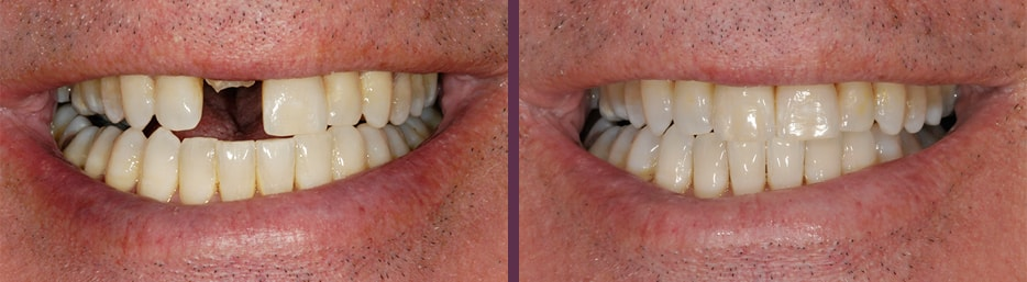 Before and after of dental crown used to restore a severely broken (almost missing) front upper tooth