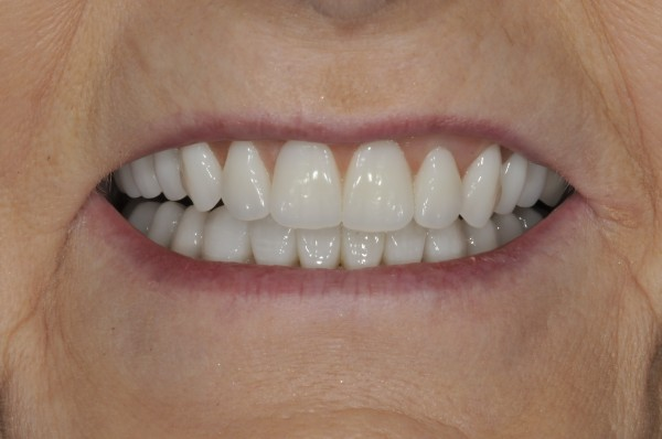 Dentures from our Waldorf dentist can restore your smile.