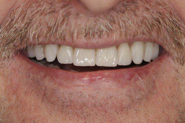 Dentures Waldorf