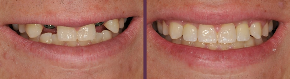 A dental implants case study showing before and after treatment with Waldorf dentist, Dr. Olson getting 2 dental implants for 2 top front teeth that were missing