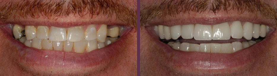 Dental implants before and after with patient of Dr. Olson, cosmetic and implant dentist in Waldorf, MD