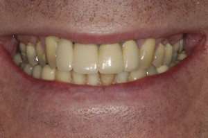 Dental Implants Southern Maryland