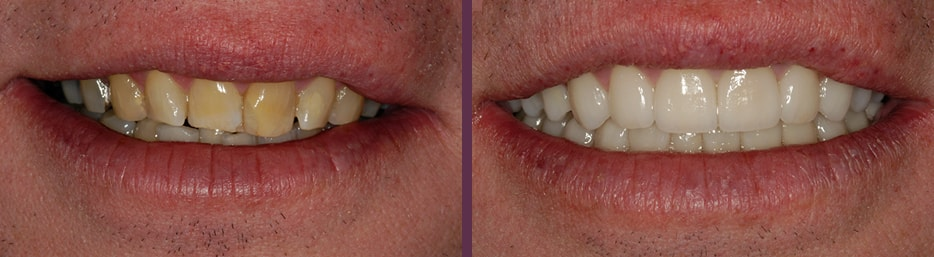 A case study showing an actual patient of Dr. Olson's smile before and after full mouth rehabilitation treatment