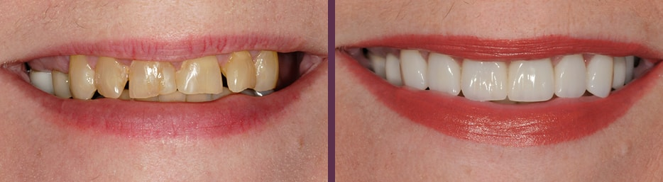 Before and after of this female patient's spectacular smile transformation with Dr. Olson's full mouth reconstruction dental work