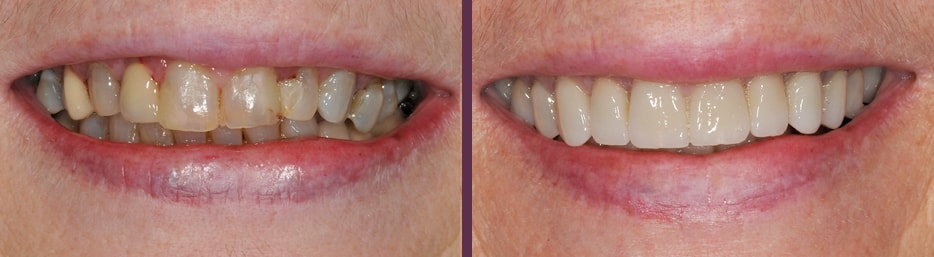 Full mouth reconstruction before and after with Dr. Olson, dentist in Waldorf, MD