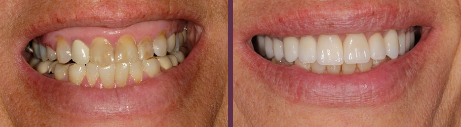This patient with decay and in need of gum therapy also got full mouth reconstruction and changed his life thanks to Dr. Olson