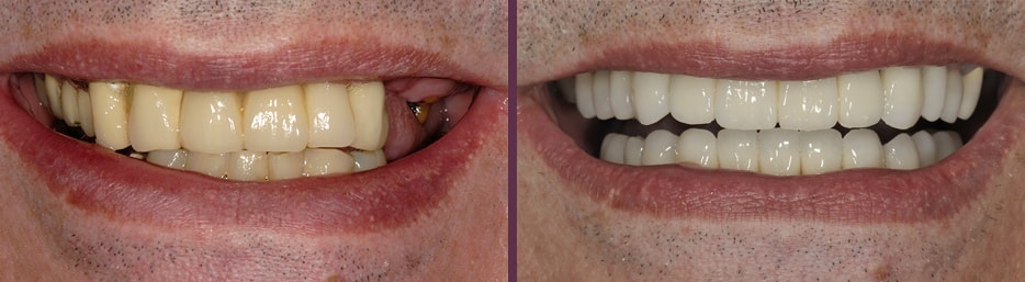 A smile before and after dental implants from Dr. Bradley J. Olson in Waldorf