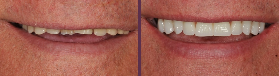 Male patient before and after implant supported dentures for his whole upper arch of teeth with Dr. Olson, dentist in Waldorf, MD