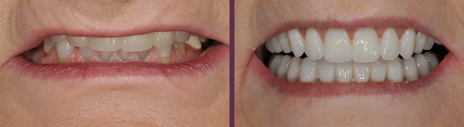 "An actual patient before and after implant dentures (""All-on-4"" style dentures) from Dr. Olson."