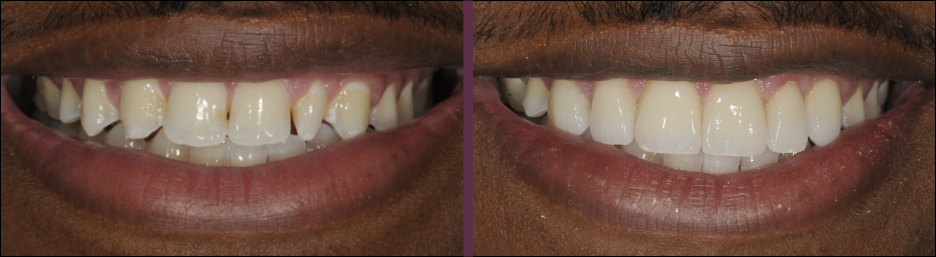 A case study showing an actual patient of Dr. Olsen's smile before and after receiving porcelain veneers.