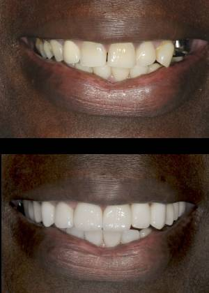 An actual patient of our Maryland dentist Dr. Olson before and after dental treatment