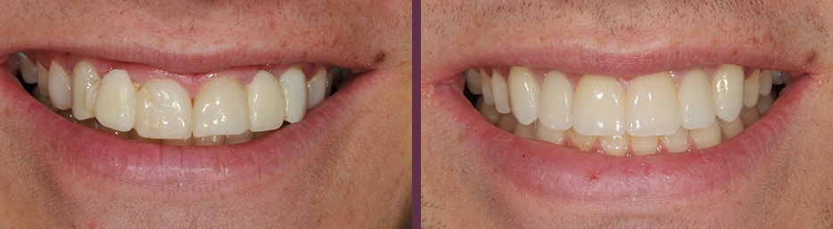 Porcelain veneers before and after with a patient of Dr. Bradley Olson, cosmetic dentist in Waldorf, MD