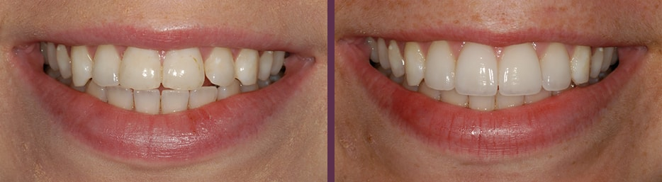 No-prep porcelain veneers before and after of female patient of Dr. Bradley Olson, cosmetic dentist in Waldorf, MD