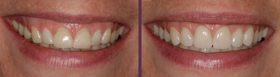 No-prep porcelain veneers before and after smile transformation of this female patient of Dr. Olson, cosmetic dentist in Waldorf, MD