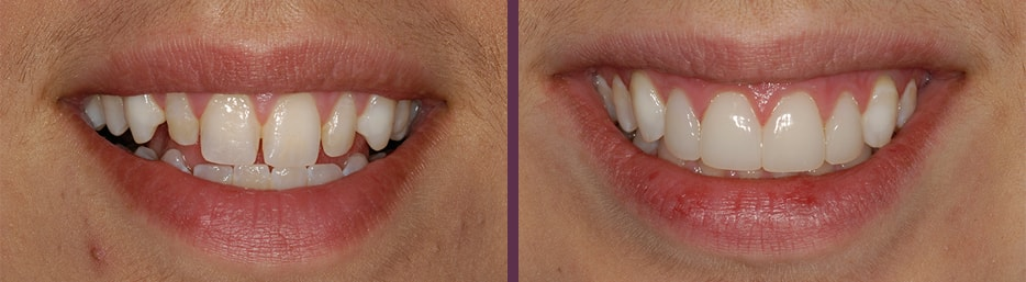 No prep veneers before and after fantastic patient aesthetic transformation from Dr. Olson, cosmetic dentist Waldorf!