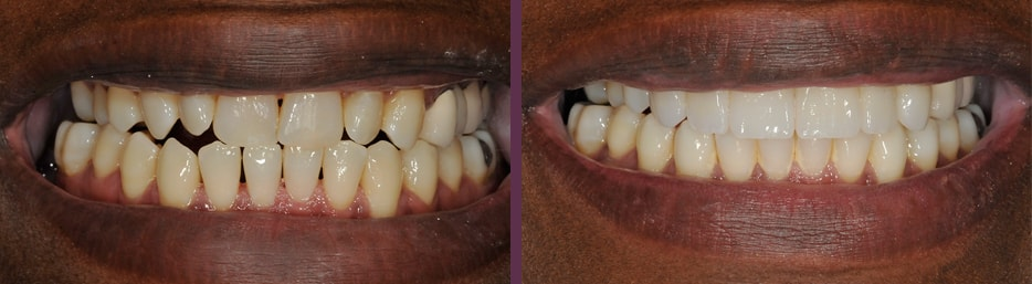 Before and after of No-prep Porcelain Veneers bonded onto the natural, unaltered surface of this actual patient of Dr. Bradley Olson, cosmetic dentist in Waldorf, MD