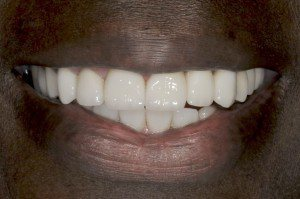 Dental Implants Southern Maryland