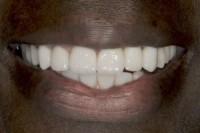 Close up of strait teeth