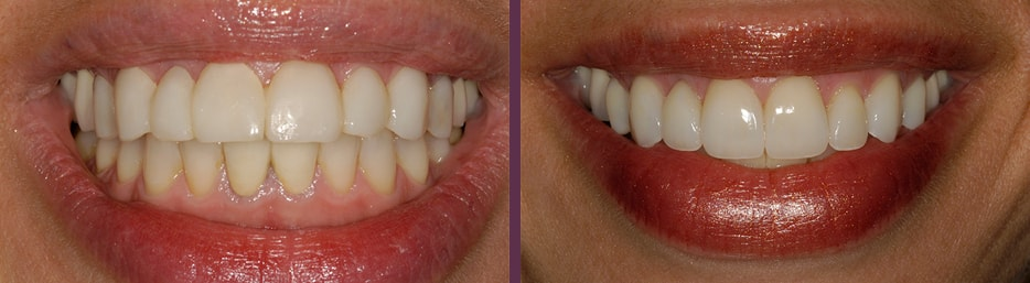 An actual patient case study showing before and after porcelain veneers treatment with Dr. Bradley J. Olsen.